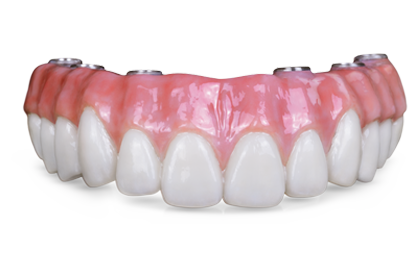 Bruxzir® Solid Zirconia Full-Arch Implant Prosthesis