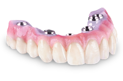 Screw-Retained Hybrid Denture