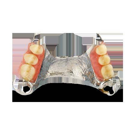 LASERTEK™ Partial Dentures